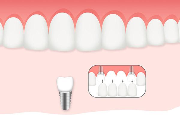 种植牙1.jpg
